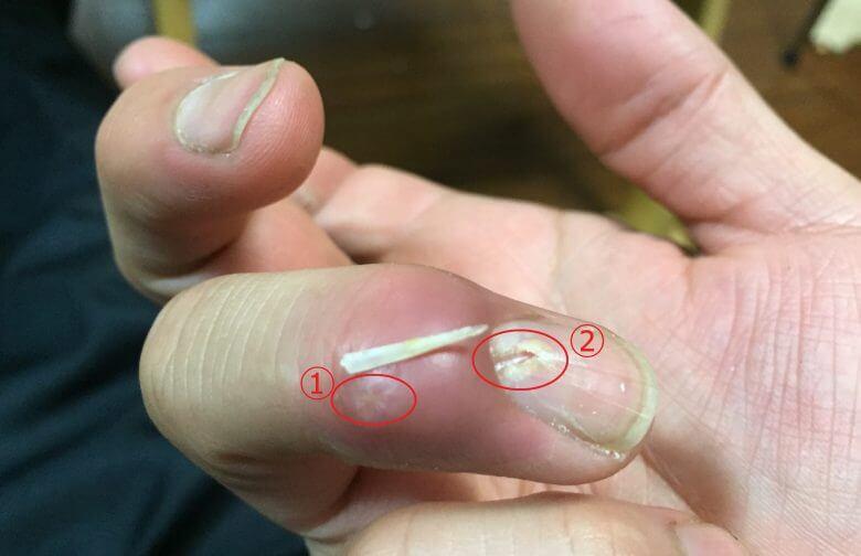 鯛のヒレが指に刺さった!雑菌多くてめちゃくちゃ腫れます(摘出画像あり)